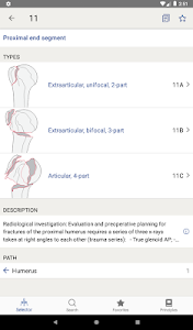 screenshot of AO/OTA Fracture Classification version 1.2